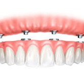 DDS Dentures + Implant Solutions of Ponca City